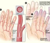 Raynaud's lupus